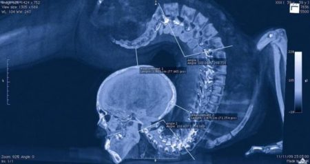 【レントゲン】体操選手の「X線写真」がどう見てもおかしい。どうなってるんだ・・・
