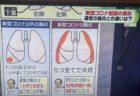 【新コロナ】通常の肺炎との違いがわかりやすい(画像あり)