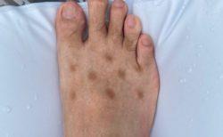 【爆笑】病名不明、足の甲にできた原因不明の斑点・・正体が判明!